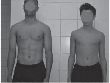 Beide jongens zijn 14 jaar. De rechter is een laatrijper en bereikt zijn hoogste groeisnelheid (PHV-waarde) pas over 2 jaar en wordt uiteindelijk veel groter dan de jongen links. De Jongens links is namelijk al ver over zijn groeispurt heen.
