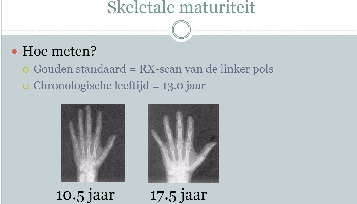 Aan een rontgenfoto van een hand van 2 13-jarige jongens kan je zien hoe ver ze zijn in hun biologische ontwikkeling. De een is 10,5 de ander al 17!
